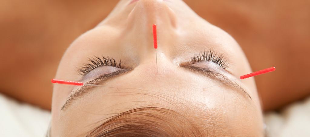 la-petite-clinique-ste-therese-acupuncture-2