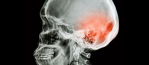 La commotion cérébrale et l'ostéopathie